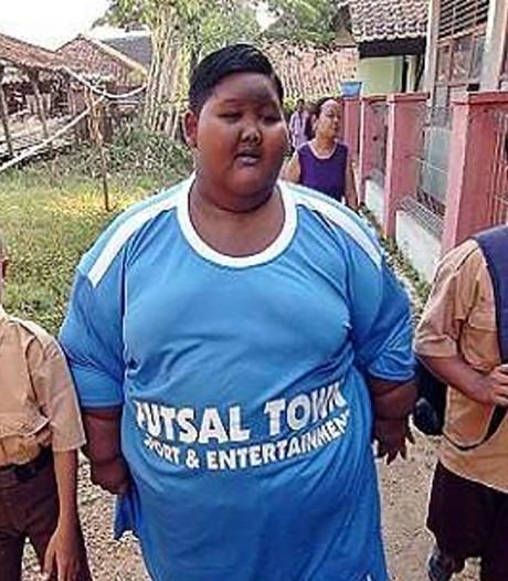 Zwaarste jongen ter wereld (10) kan weer stukjes lopen