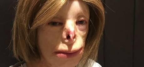 Ernstig verbrande tiener neemt het op tegen pesters
