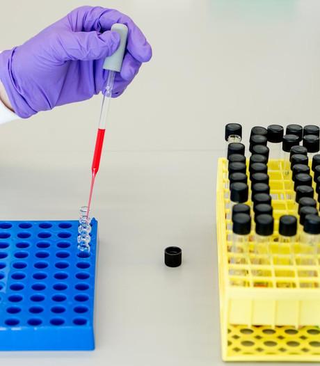 AMC ontdekt middel dat HIV-besmetting kan tegenhouden