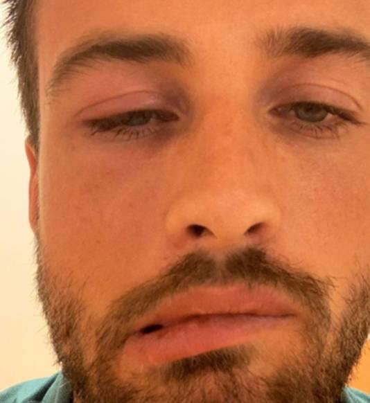 Dave Roelvink had last van zijn gezicht.