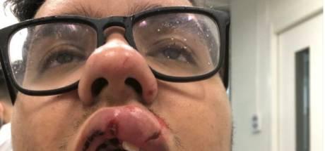 Jongen (17) mishandeld in Hengelo