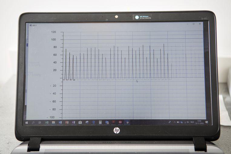 Op het beeldscherm verschijnen de regelmatige pieken en dalen van een gezonde hartslag.  Beeld Niels Blekemolen