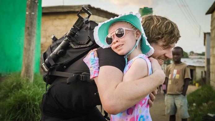 Het Zambiaanse albinomeisje Ruth omhelst de Apeldoornse fotograaf Adrian Kuipers, die een actie voor haar is begonnen.