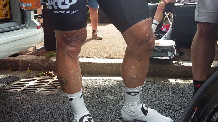 De benen van Thomas De Gendt.