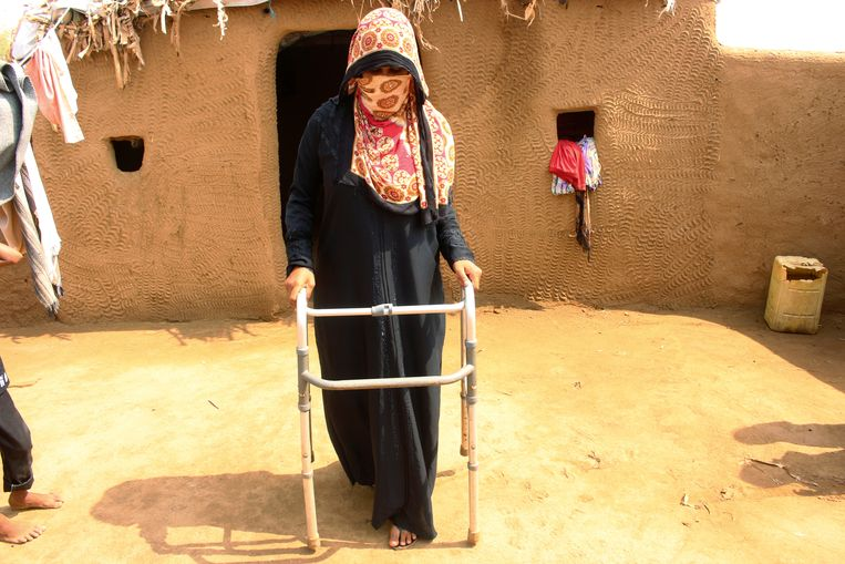 Een 26-jarige vrouw die door een kogel geraakt werd in haar been, probeert met een hulpstuk weer te lopen in een vluchtelingenkamp in Jemen.