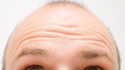 Geen haartransplantatie, pruik of toupet: wat is dermaskin, de techniek die Helmut Lotti zijn weelderige haardos bezorgd zou hebben?