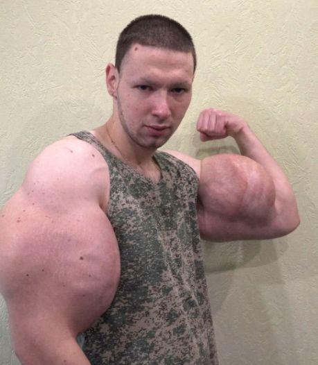 Bodybuilder laat met olie gevulde megabiceps weghalen: 'Raar hoor, die dunne armen'