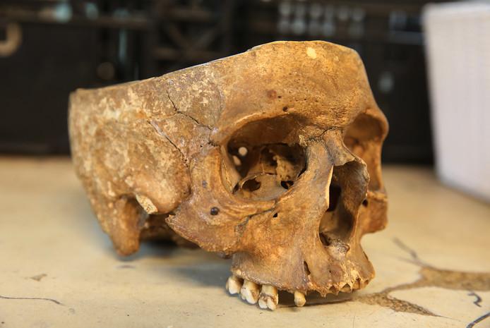 Een close up van de bij Kringloop Twello ingeleverde menselijke schedel.