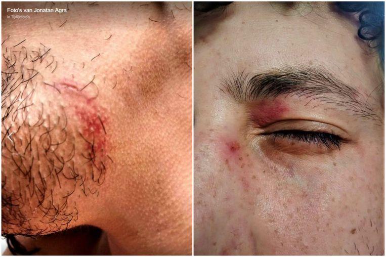 Jonatan Agra schreef op Facebook  wat hij had meegemaakt en postte enkele foto's van zijn gehavend gezicht.