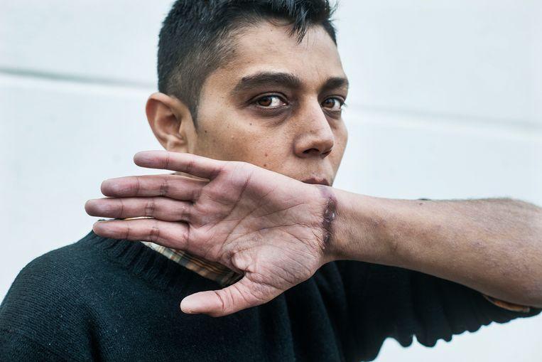 De Syriër Mazen al-Humada, hij heeft anderhalf jaar gevangen gezeten en is gemarteld door het regime van Assad. Hij laat de verwondingen zien aan zijn pols, waar hij aan werd opgehangen.  Beeld Guus Dubbelman / de Volkskrant