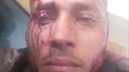 Venezolaanse leger richt bloedbad aan onder opstandelingen: rebellenleider deelt aanval via sociale media