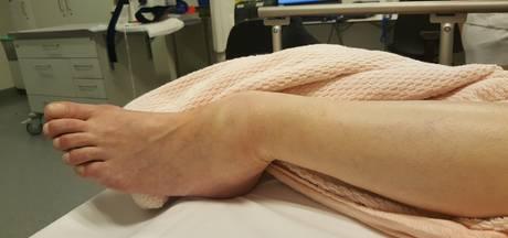 Slachtoffer parkeerruzie met oud-voetballer ligt op intensive care