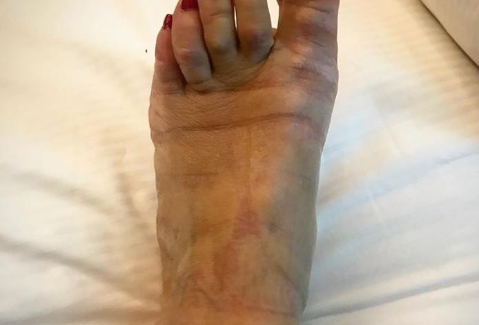 Le pied de Romane Bohringer après une montée des marches.