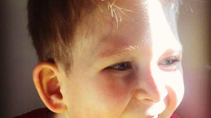 Baby geboren met twee procent hersenen doet artsen versteld staan
