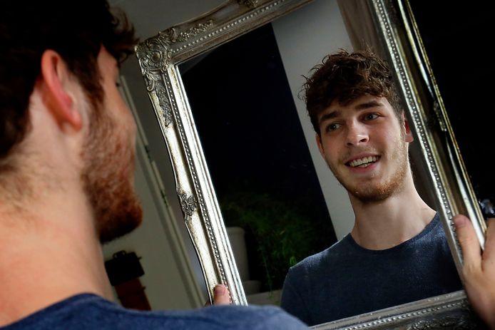 Nils Middag (20) roept mensen op om mee te betalen aan zijn nieuwe gebit, nadat de zorgverzekeraar de claim afwees.