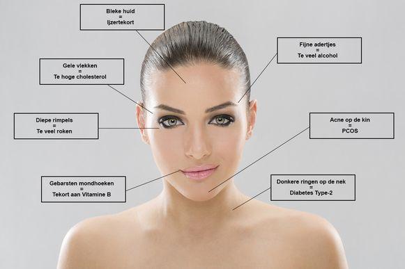 vitamine huid acne
