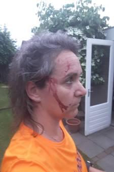 Roofvogel grijpt Suzanne: '5 centimeter naar voren en ik had geen oor meer'