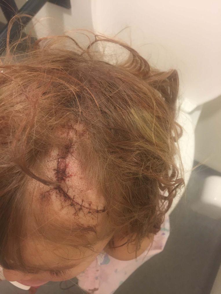 Isabella-Noa liep een diepe hoofdwonde op nadat ze werd aangereden door een fietser.