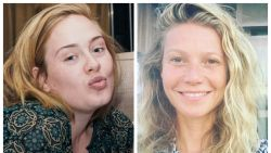 'No Make-Up Day': zo zien BV's en celebs eruit zonder make-up