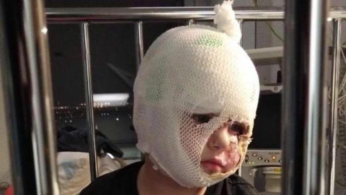 Diego, trois ans, a dû subir une greffe de peau au niveau de sa joue gauche et de son menton.