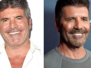 Qu'est-il arrivé au visage de Simon Cowell?