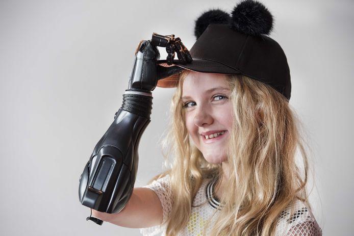 De Britse Tilly Lockey met een bionische arm. Het 10-jarige Britse meisje overleefde de groep B-meningokokken bloedvergiftiging, waarbij beide armen geamputeerd moesten worden.