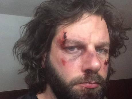 Politie en horeca 'not amused' over reclamestunt rockband Bökkers