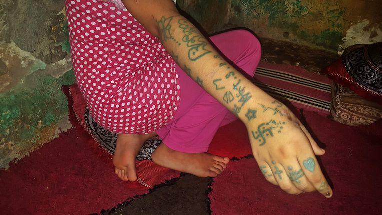 Op de armen van Khadija behalve vreemde tattoos ook verwondingen door uitgedrukte sigaretten.