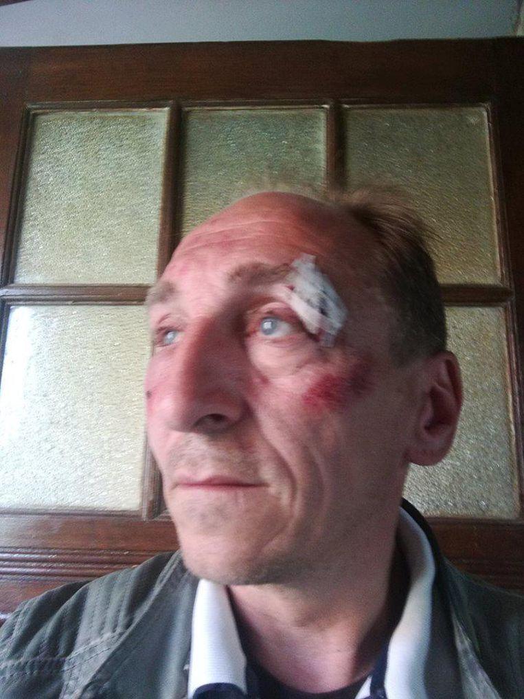 Paul Stampaert (48) houdt een gescheurd ooglid en drie gekneusde ribben over aan het incident.