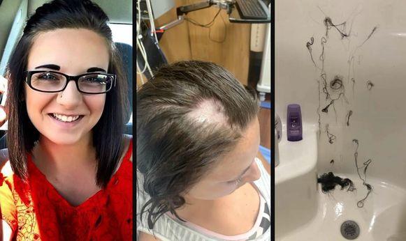 Links: Ashley zoals ze er normaal uitziet. Centraal: de shampoo richtte heel wat schade aan. Rechts: de plukken haar die achterbleven in de douche.