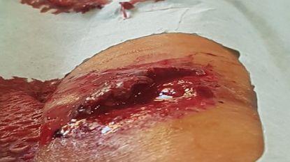 """Tiesj Benoot toont gapende vleeswonde in Vuelta: """"Nu een paar dagen afzien tot de rustdag"""""""