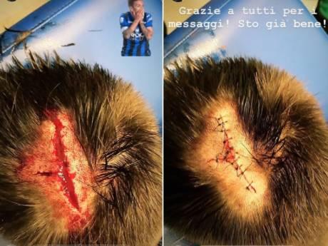 Leeuwinnen genieten van de natuur, Toloi stelt fans gerust na hoofdwond