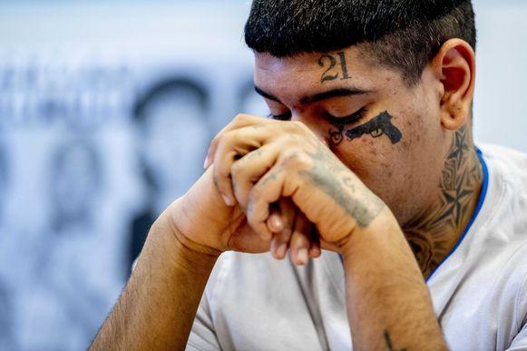 Mitchell  krijgt zijn eerste laserbehandeling om van een tattoo af te komen.