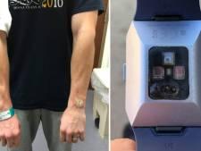 Man loopt zware brandwonden op door zijn Fitbit: 'Het smolt door mijn arm'