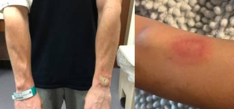 Flinke brandwonden door Fitbit; is het dragen van een sporthorloge gevaarlijk?