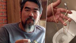 Horror: man haalt lintworm van 10 (!) meter uit zijn achterste