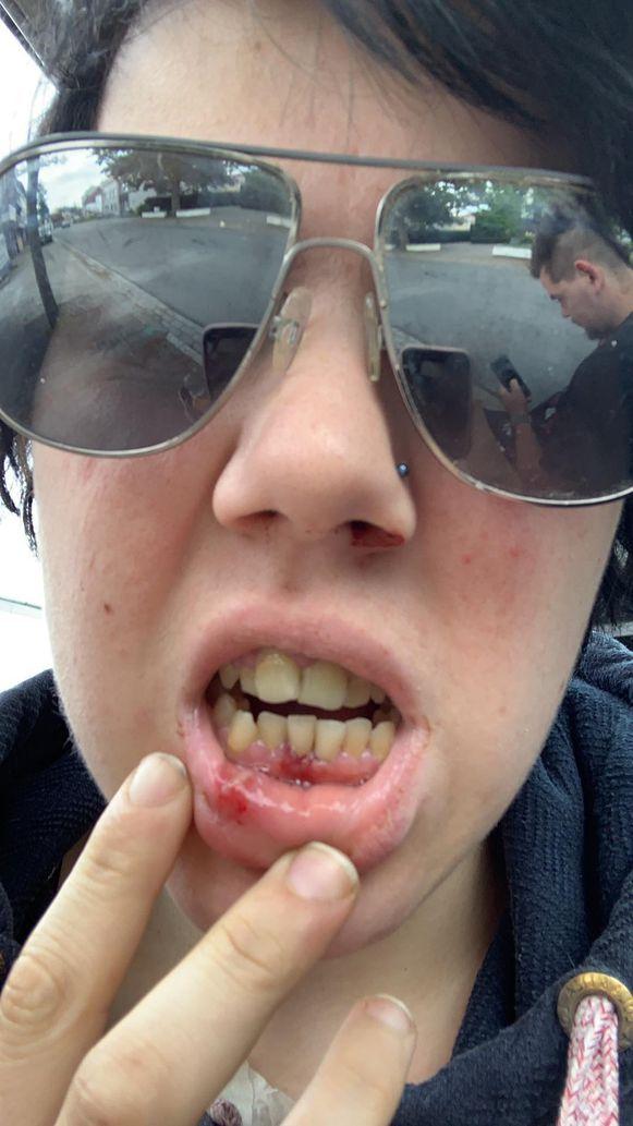 Ellen hield een hersenschudding en beschadigde tanden over aan de aanval.
