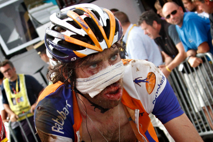 Ten Dam ingepakt na een valpartij op zijn gezicht in de Tour van 2011.