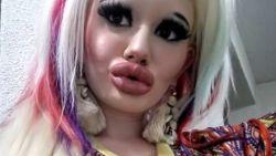 """Andrea (22): """"Geen idee of mijn lippen nog meer fillers verdragen, ik trek geen grenzen"""""""