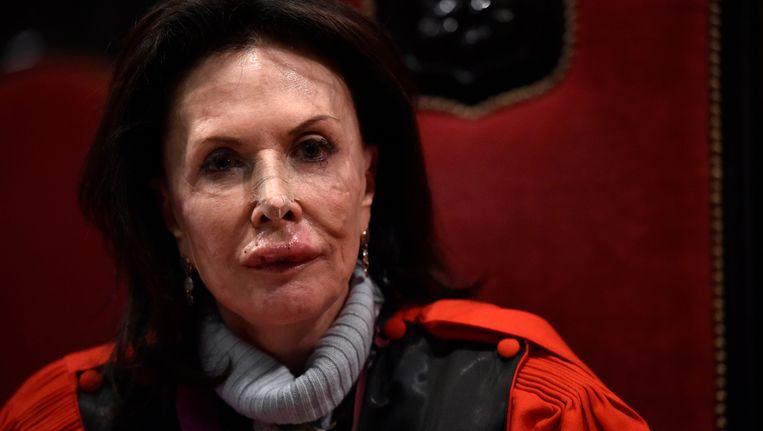 Assissenvoorzitster Karin Gérard blijft erbij dat ze is overvallen en zo hard geslagen werd dat ze in het ziekenhuis belandde met een hersenschudding.