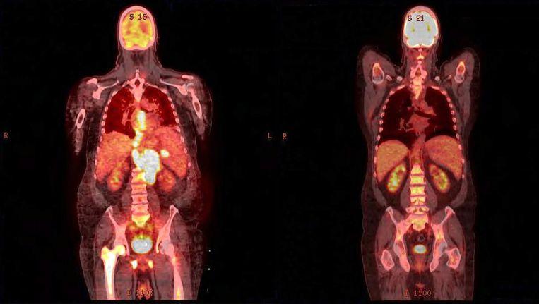 Met een beetje radioactiviteit kun je zien wat een medicijn in je lichaam doet. Links is een tumor te zien, die is rechts verdwenen. Dit zijn overigens niet de scans waar biochemicus Guus van Dongen mee werkt. Beeld .