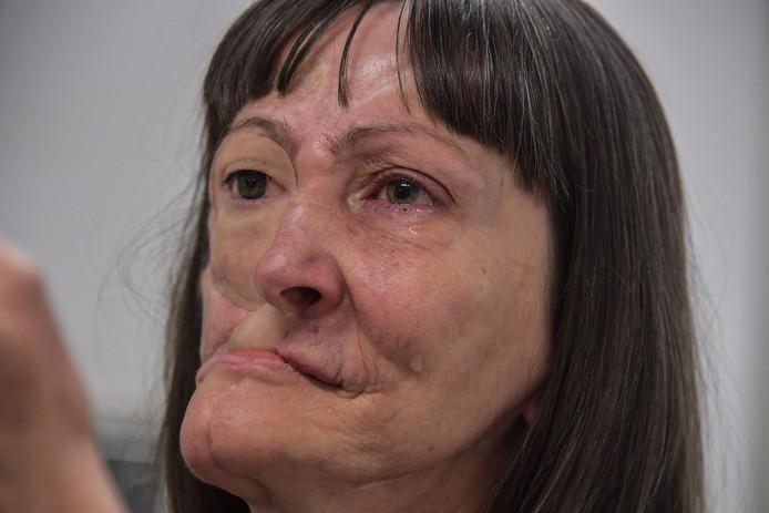 Denise Vicentin a perdu un œil et une grande partie de la mâchoire en raison d'un cancer