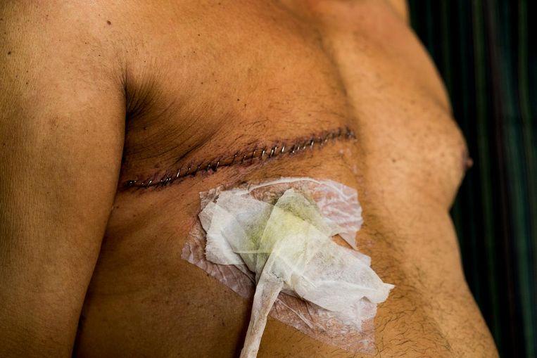 Rijstboer Gurbhej Singh heeft borstkanker Beeld Adriane Ohanesian