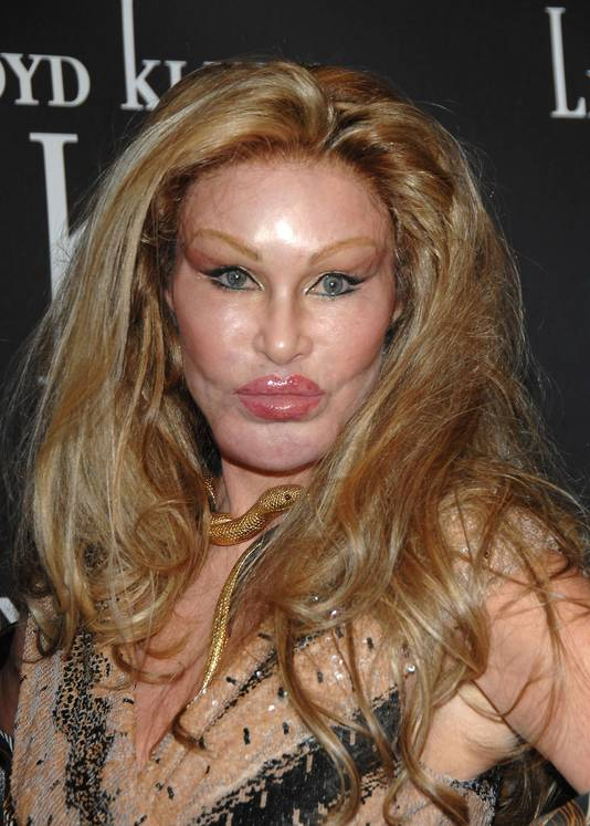 Jocelyn Wildenstein is een Newyorkse socialite die na talloze operaties de naam 'Real catwoman' kreeg.