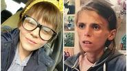 """""""Ik heb hard gevochten, maar anorexia heeft gewonnen"""": ziekenhuis vergeet ouders te waarschuwen voor risico op zelfdoding"""