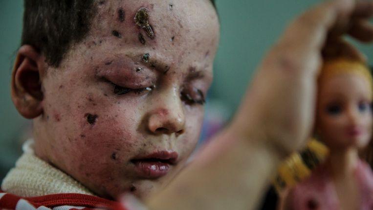 Hawra Hassan (4) raakte gewond in het gezicht en aan de voet bij de luchtaanval van de coalitie op 17 maart. Haar moeder kwam om.