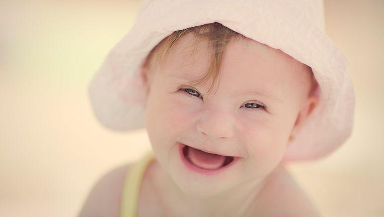 Een baby met het syndroom van Down. Beeld thinkstock