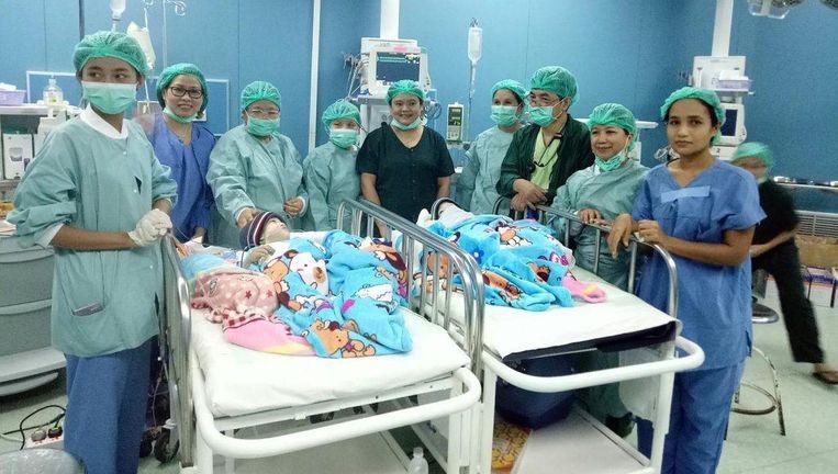 De tweeling na de succesvolle operatie.