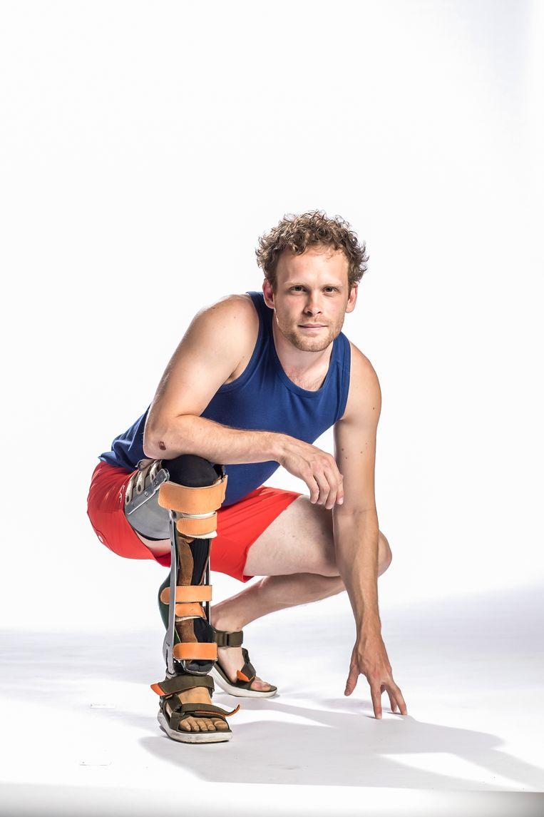 Expeditie Robinson - Frederik neemt deel met een prothese.
