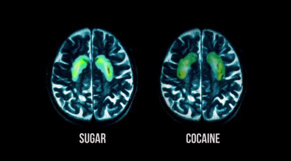 Suiker geeft dezelfde prikkels als cocaïne en is eveneens verslavend.